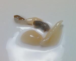 カコボラ,唾液腺